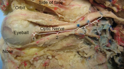 Optic_nerve_parts